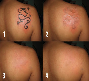 Thinking about Laser Removal?