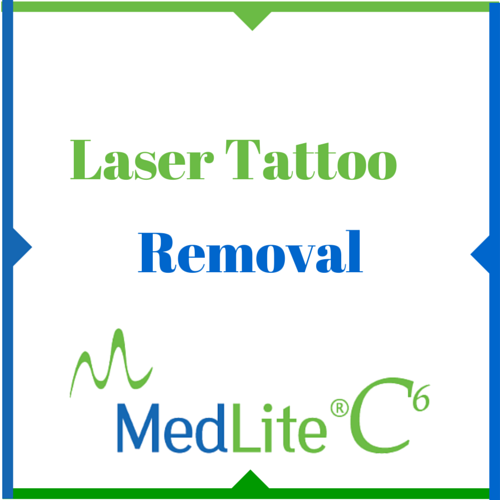 Laser Tattoo Removal in Tampa Florida - Weight and Body Solutions