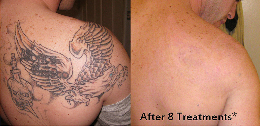 tampa tattoo removal services weight and body solutions