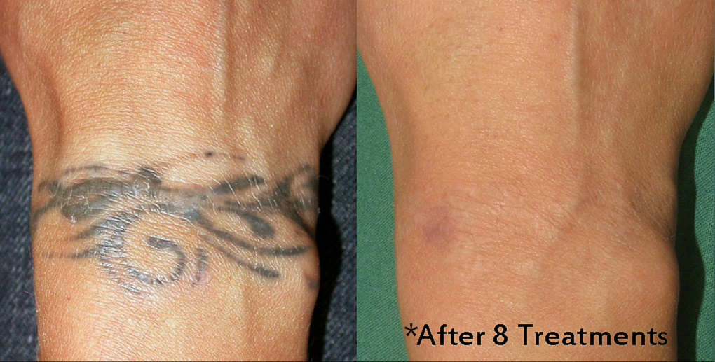 Tampa tattoo removal services weight and body solutions for Tattoo removal healing